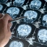 Statins Improve Brain Injury Survival Rates by 76%