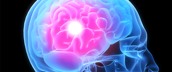 One in Three American Adults May Have Had a Warning Stroke