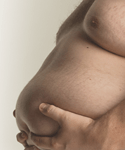 AMA: Obesity Is a Disease. Do You Agree?