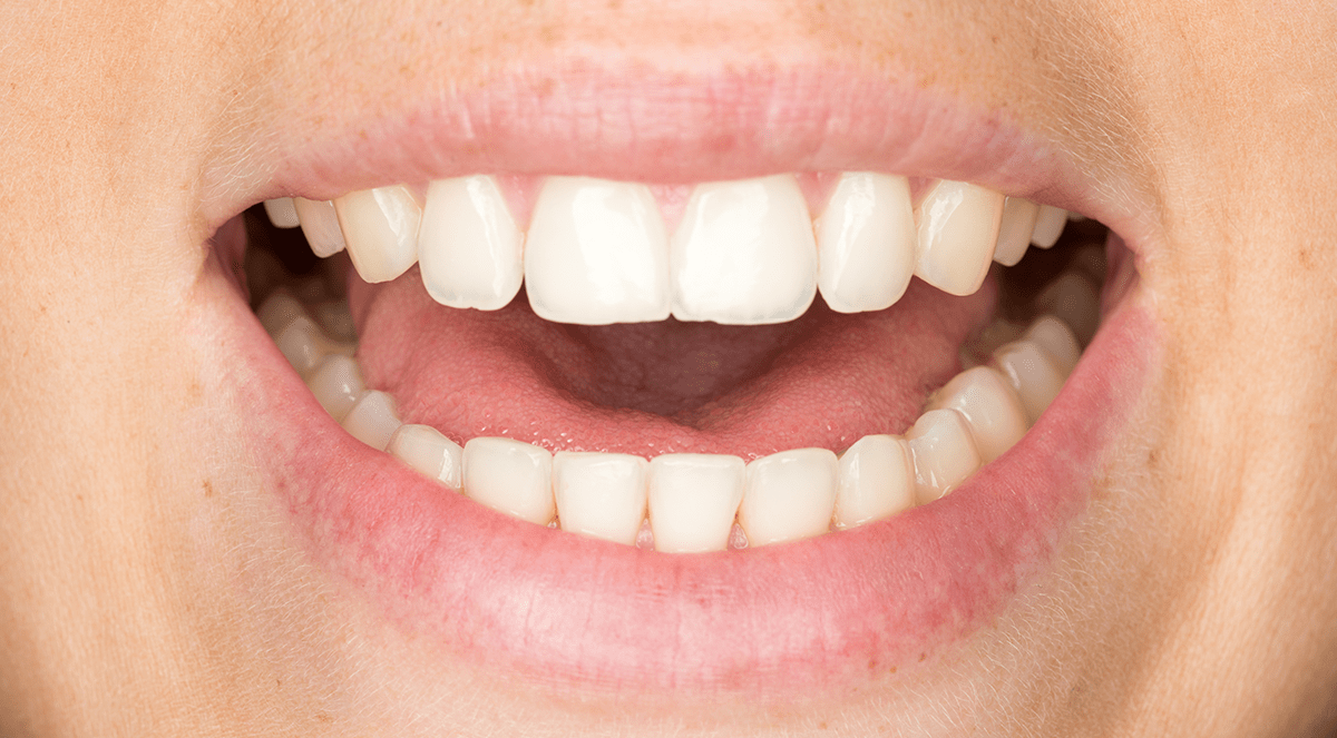 Researchers Find More Evidence of Link Between Severe Gum Disease and Cancer Risk