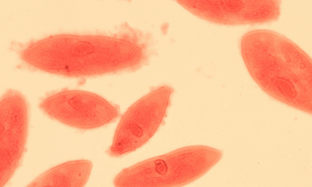 Patients in Health Care Facilities at Risk for Legionnaires' Disease
