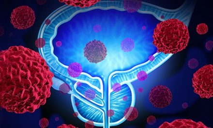 Researchers Reveal Biomarker for Guiding Prostate Cancer Treatment