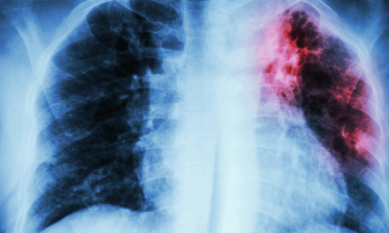Global Burden of Tuberculosis: Are We Making Any Improvements?