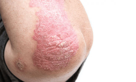Psoriasis & Comorbidity Development in Children