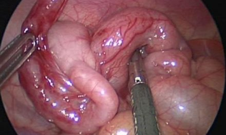 Antibiotics for the treatment of simple appendicitis: Are we there yet?