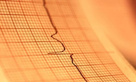 County-Level Poverty Strongly Tied to Heart Failure Mortality