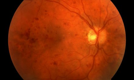 Diabetic Retinopathy Exams in Primary Care