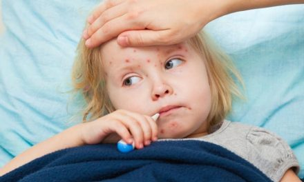 Some Cities in Texas Susceptible to Measles Outbreaks