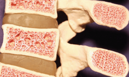 Low Bone Marrow Associated with Larger Muscle Fat Areas