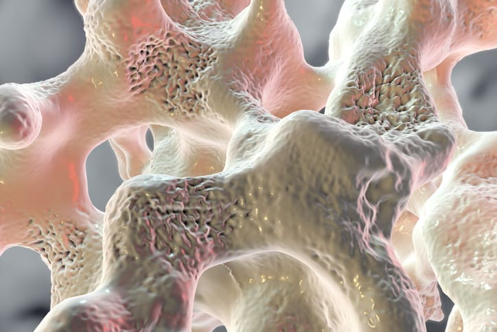 Denosumab Improves Bone Density in RA/Osteoporosis Dual Dx