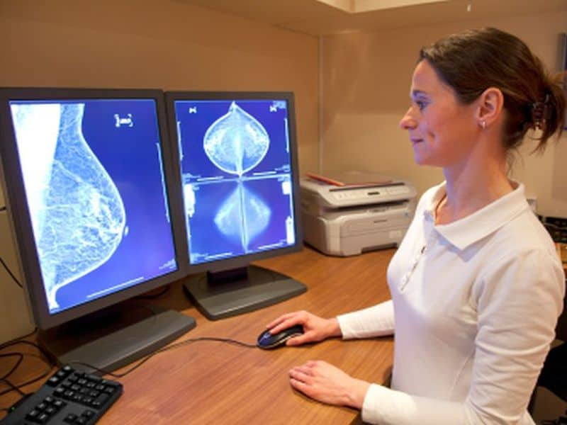 The Effectiveness of Anti-Cancer Therapy in Curing Breast Cancer during COVID-19