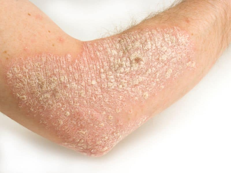 Survival From COVID-19 High in Patients With Psoriasis
